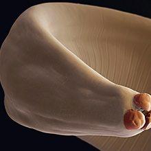 Черви паразиты (глисты): как передаются, методы лечения и профилактики