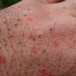 Какие болезни переносят блохи и чем это опасно