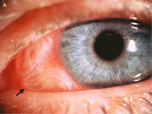 Симптомы в глазу