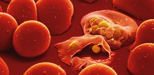 Малярия в крови