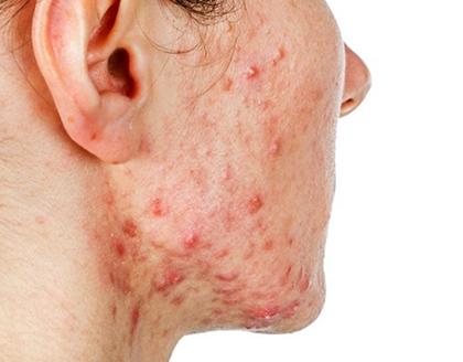 Симптомы на лице