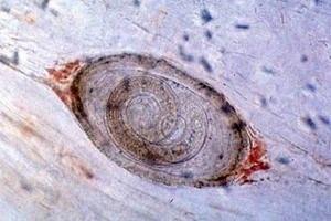 Личинка гельминта в кишечнике