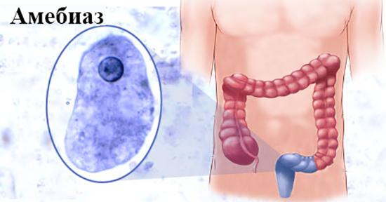 Амебиаз кишечника