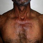Цистицеркоз: симптомы, профилактика и методы лечения