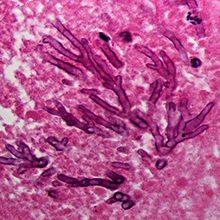 Аспергиллез: признаки, диагностика и лечение