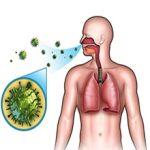 Респираторный хламидиоз: причины, симптомы и лечение
