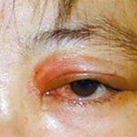 Спарганоз: пути заражения, симптомы и лечение