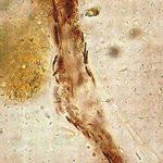 Йодофильная флора в кале у ребенка: что это, чем опасно и что делать