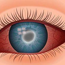 Акантамебный кератит: причины, симптомы и лечение