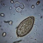 Клонорхоз: причины возникновения, симптомы и лечение