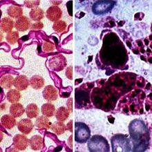 Жгутиконосцы паразиты: примеры и чем они опасны