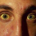 Лептоспироз у человека: симптомы, диагностика и лечение