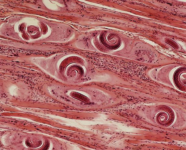 Паразиты в мускулах