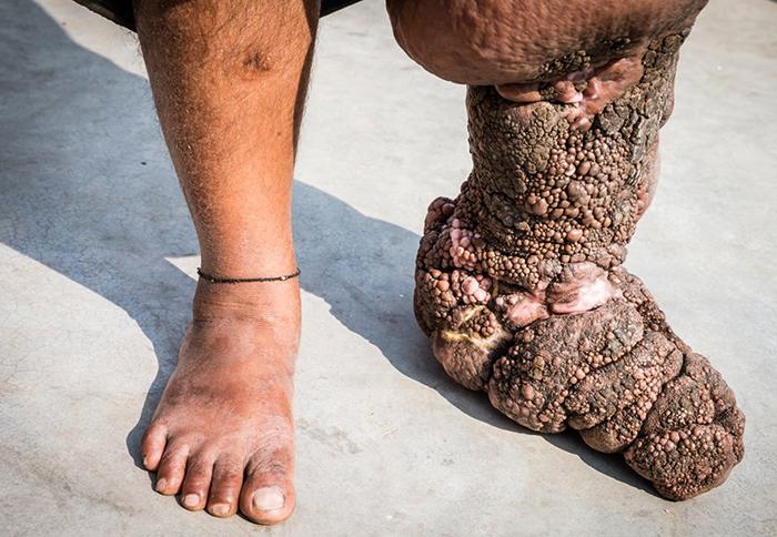 Как выглядит слоновая болезнь