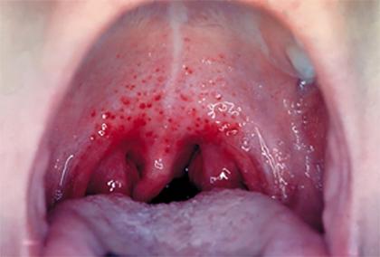 Стрептококки в горле