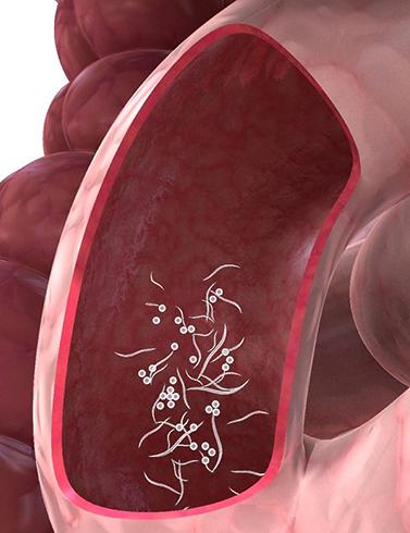 Глисты в кишечнике