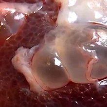 Паразиты в печение лося: виды и чем они опасны