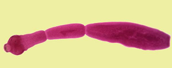 Эхинококк (Echinococcus granulosus)