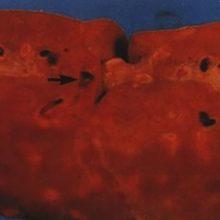 Паразиты в печени человека: причины появления, симптомы и лечение
