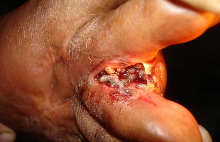Рана с опарышами