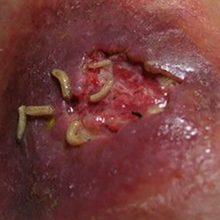 Черви и паразиты в ране человека: что это и насколько опасно